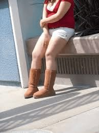 Fat legs and uggs